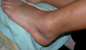 The Ankle: 72 Hours Post-Injury